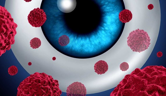 Eyes on a Rare Form of Melanoma