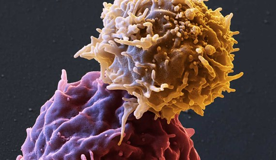CAR T Drives New Ovarian Cancer Research