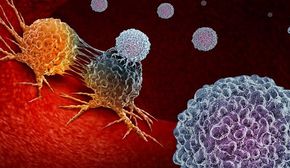 Treating Gynecologic Cancers With Immunotherapy