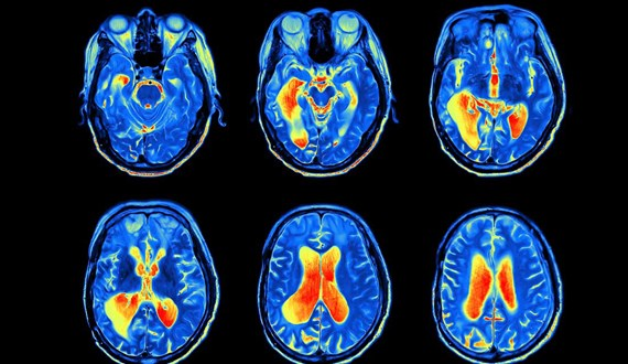 5 Things to Know about Brain Cancer Treatments