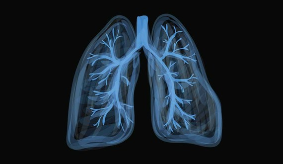 Besides Smoking What Causes Lung Cancer