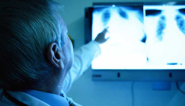 Mesothelioma Diagnosis St Petersburg FL