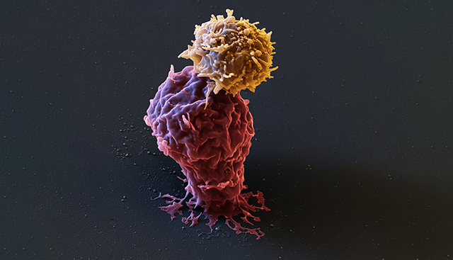 CAR T Attacking Leukemia Cell