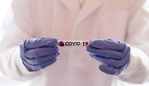 Repurposing Drugs to Fight COVID19