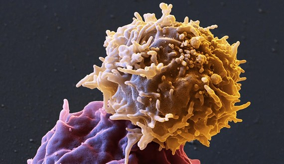 Rethinking Cellular Immunotherapy