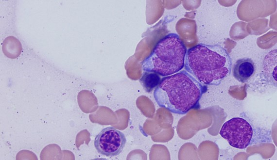 New Combination Therapy Shows Promise for Leukemia Patients