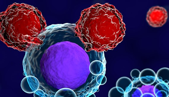 Can UltraCAR-T™ Treat Myeloid Malignancies