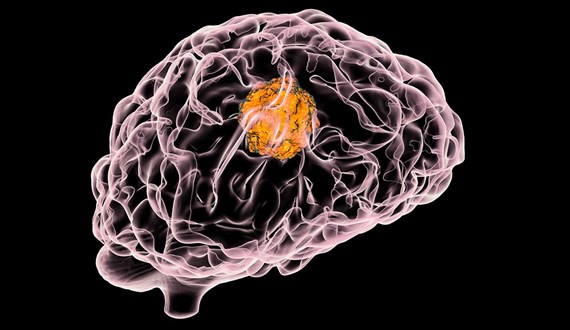 Parasite in Undercooked Food May Be Linked to Brain Cancer