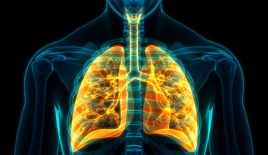 3-D image of lung