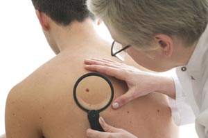 Melanoma screening