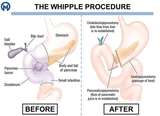 Whipple Procedure before and after