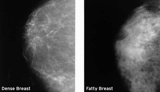 two-normal-mammograms-dense-fatty.jpg