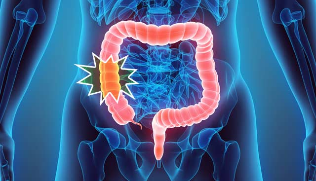 Five-Signs-of-Colorectal-Cancer.jpg