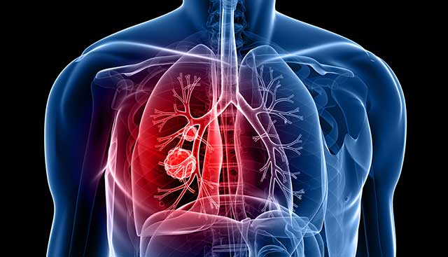 lung-cancer-image.jpg